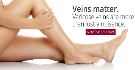 Vein Treatments Specialists: Spider, Varicose, Diseases, Surgery UT